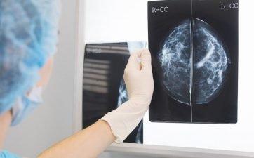 Teste em Aparelho de Mamografia Digital